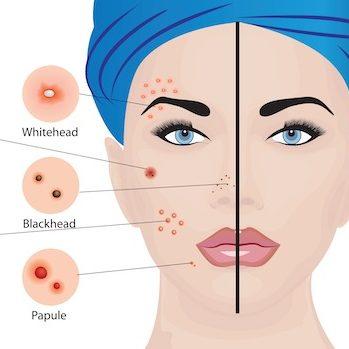 acne.pg